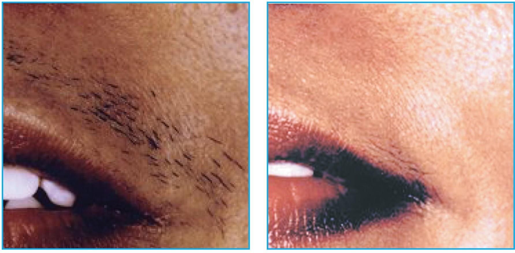 Lumina-B-_-A-Hair-Removal-Lip--0001