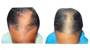 black hair loss front of head before and after
