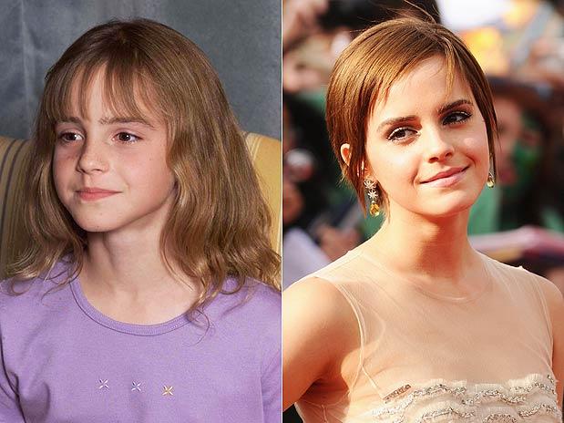 Antes e depois dos atores de Harry Potter (5/5)
