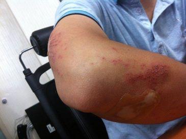 lesiones personales por accidente