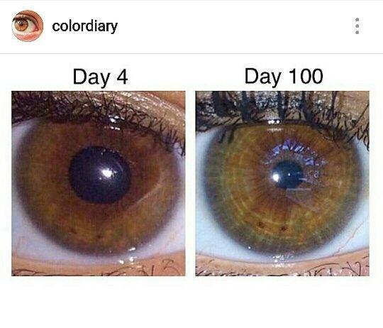 eye lightening, eye color change