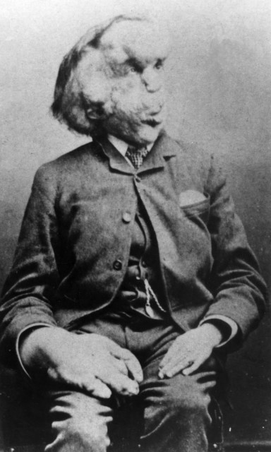 Joseph Merrick c.1889 © Royal London Hospital Archives