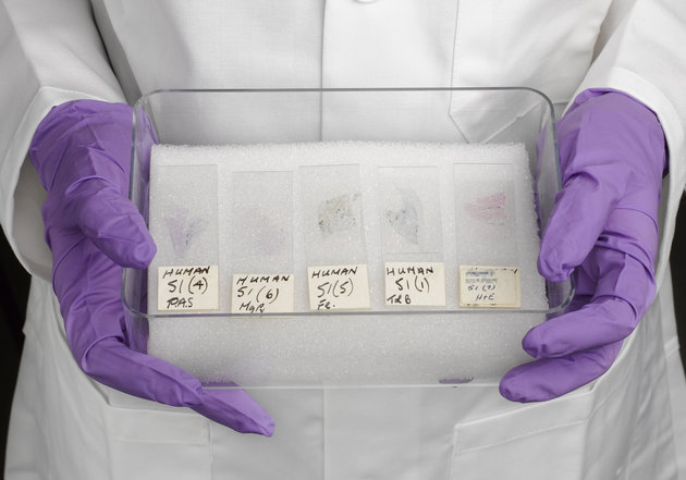 """UNITED KINGDOM - MAY 31:  Samples of lung tissue from T W, case number 51 in Elmes' work with McCaughey and Wade to produce the first detailed UK report of the relationship between exposure to asbestos and the lung cancer mesothelioma. (Photo by SSPL/Getty Images)."""
