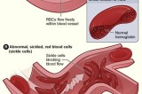 What Is Sickle Cell Disease?