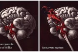 Ways To Spot A Brain Aneurysm Before It's Too Late