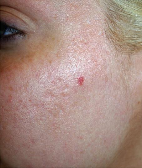 After-Sublative Rejuvenation Acne Scarring