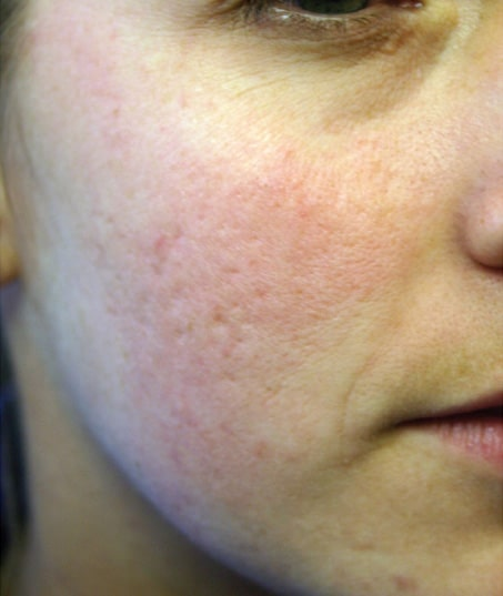 After-Sublative Rejuvenation Acne Scarring