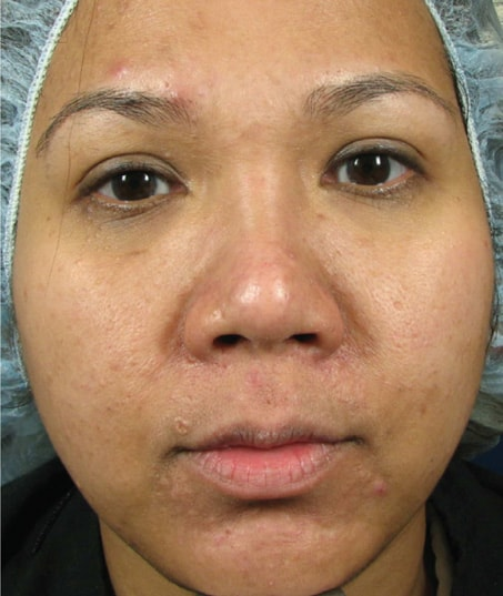 Before-Sublative Rejuvenation