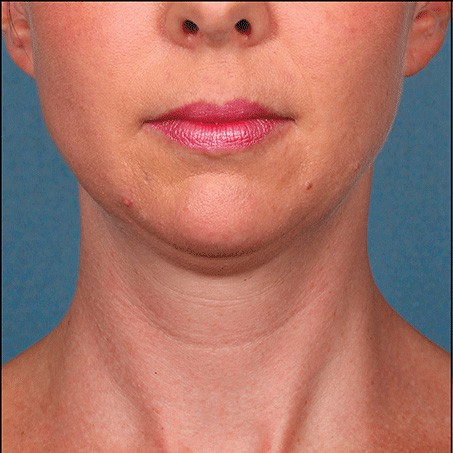 Before-Kybella (Front Views)