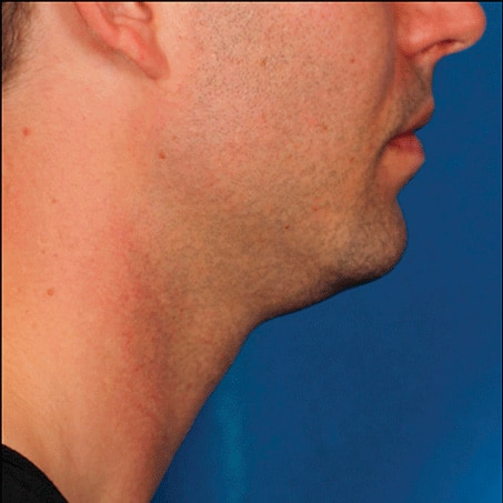 Before-Kybella (Side Views)