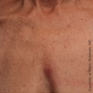 After-Ultherapy Chest