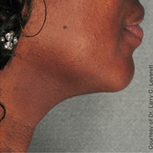 After-Ultherapy Neck