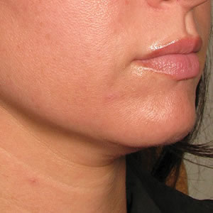 After-Ultherapy Under Chin