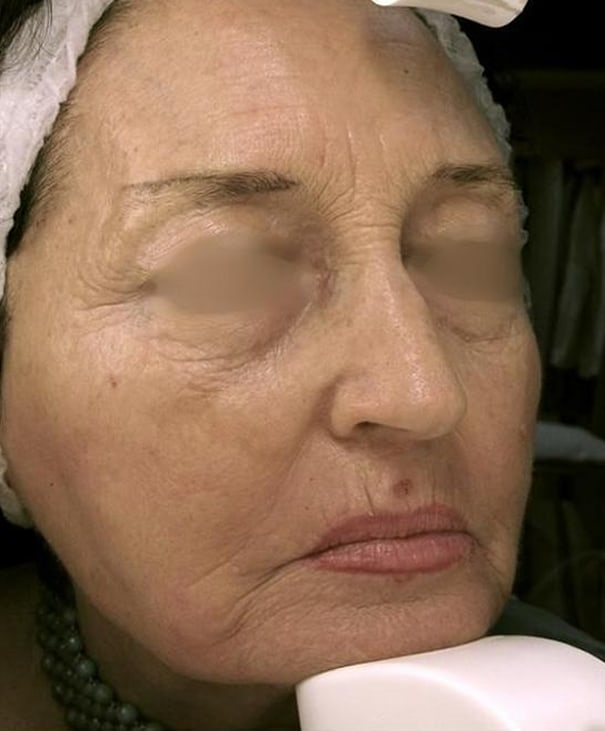 After- Fractional Skin Resurfacing