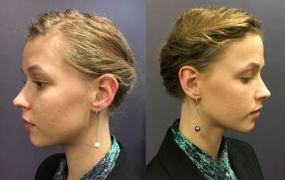 Drop pearl earrings, South Sea pearl earrings, South Sea pearls, Abrecht Bird, Abrecht Bird Jewellers