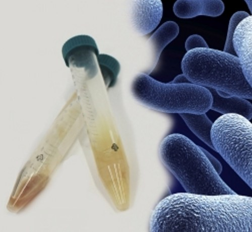 respiFISH from Miacom diagnostics for rapid detection of pathogens direct from sputum samples
