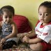 Jyoti (a sinistra) - La bambina più piccola del mondo con un bimbo