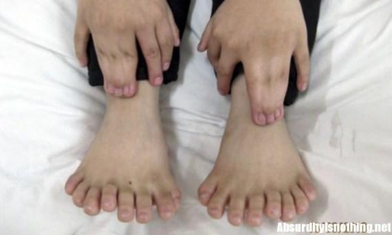 Chi-lin il bambino cinese con 31 dita