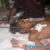 Gli si infilza una bacchetta lungo tutto il corpo ma sopravvive - Kalim Ali
