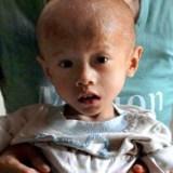 Liu Chengrui nato in 'via dei nani' smette di crescere