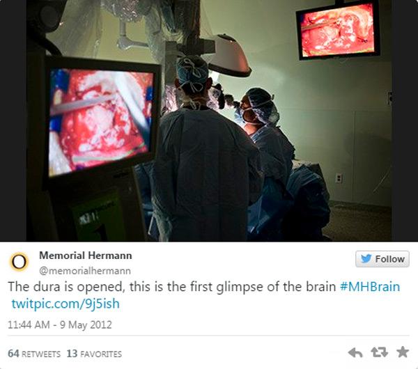 جراحة دماغ