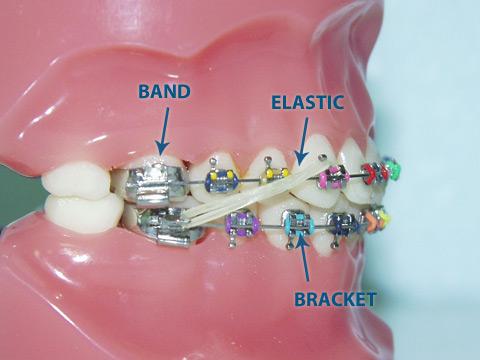 orthodontic dental assistant procedures