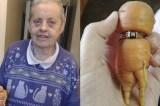 Idosa encontra anel de diamante em cenoura 13 anos após perdê-lo em horta