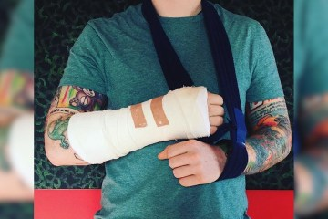 ed sheeran's broken arm