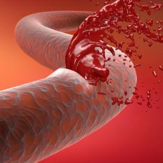 Las terapias génicas experimentales empujan la hemofilia hacia el precipicio de tratamiento duradero