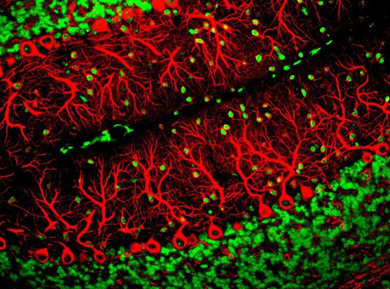 Oligonucleótidos específicos de alelo mejoran la función cognitiva en un modelo en ratón de la enfermedad de Huntington