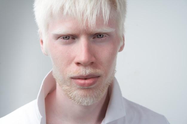 albinismo, cáncer de piel, Uganda
