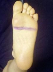 Daniela's Left Foot
