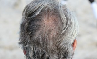 Premature Hair Greying: Surprising Reasons You May Not Know