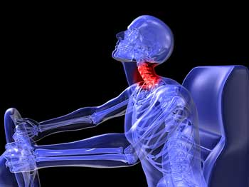 Whiplash injury caused from auto accident