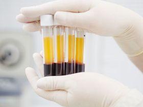 Plasma Darah untuk Pasien Corona