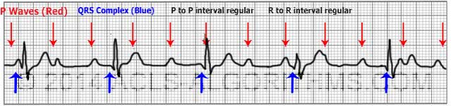 Image result for ECG- complete HEART BLOCK