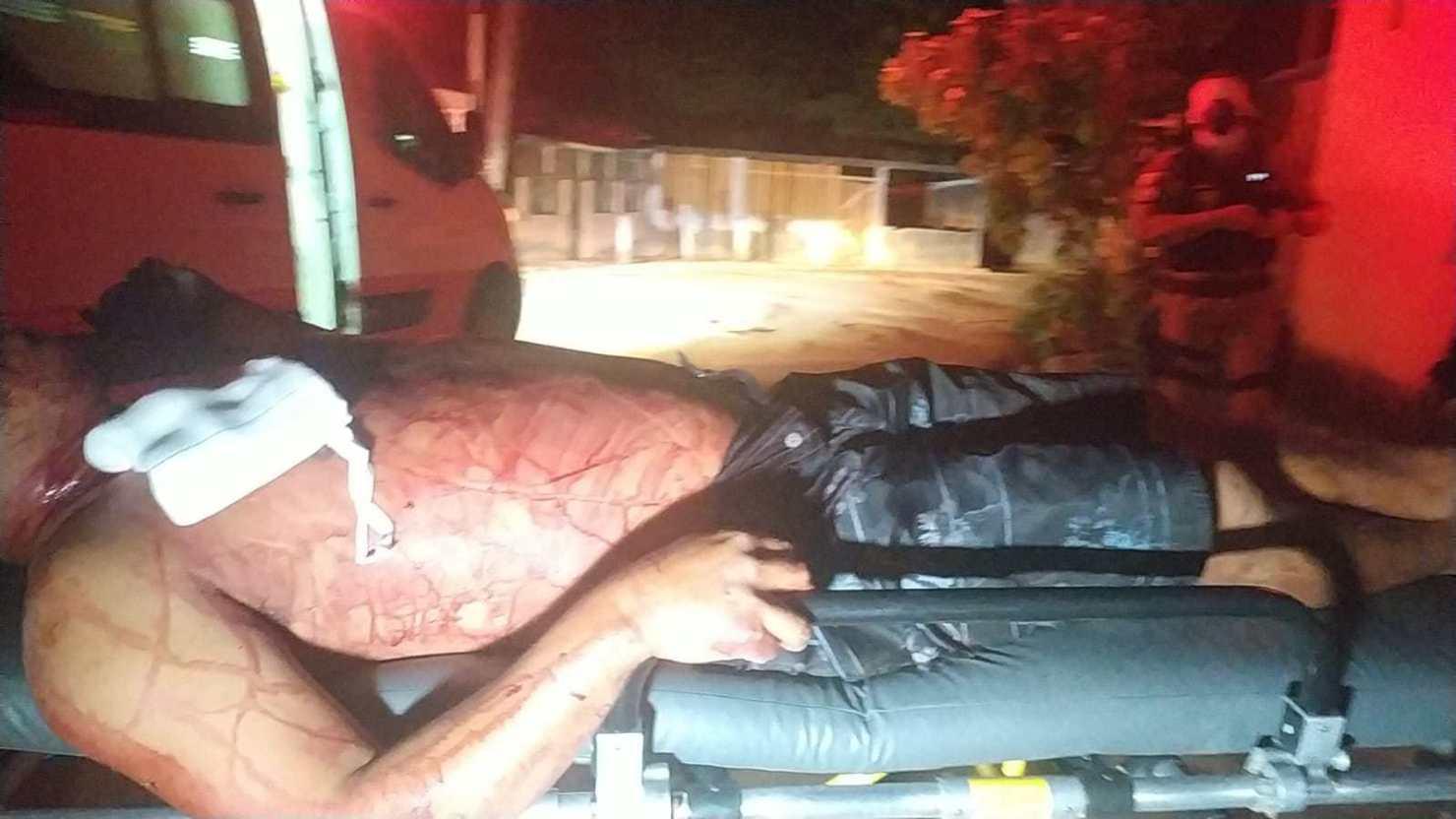 Homem é ferido com três facadas por desconhecido na Baixada da Sobral