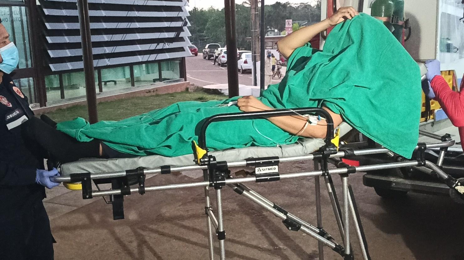 Vigilante do Into se fere com tiro acidental ao manusear arma de fogo
