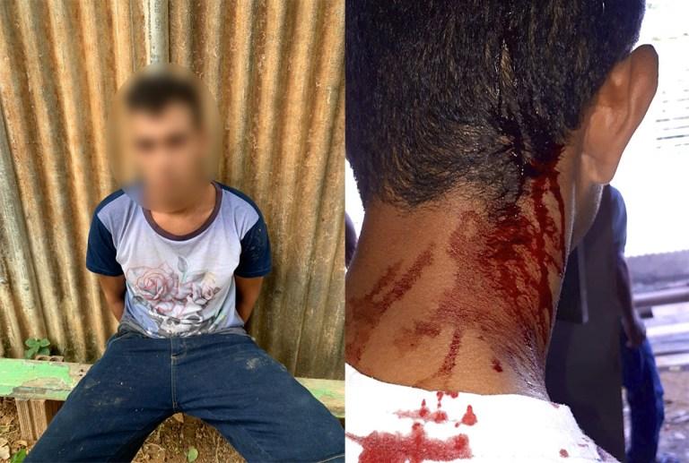 Homem sofre tentativa de homicídio e escapa após levar tiro no pescoço em Brasiléia