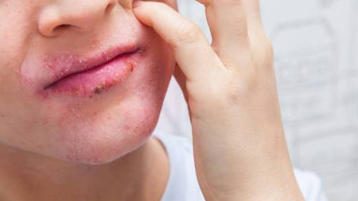 Allergic Reaction Bumps on Lips