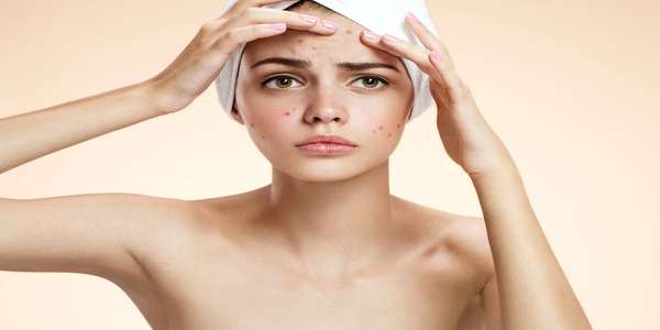 Nodular Acne: Here is How to Get Rid of Nodules Naturally