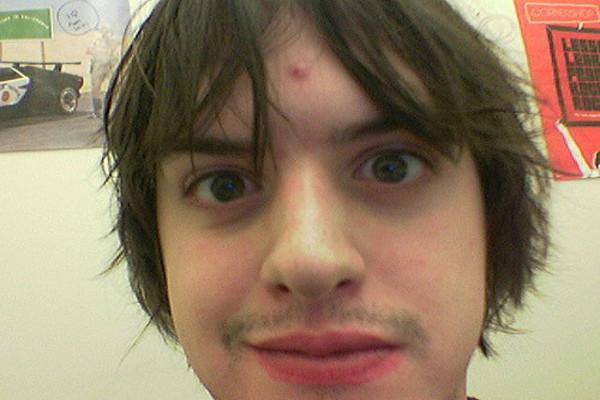 forehead whitehead