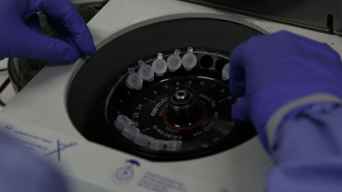 Instituto Butantan pretende desenvolver anticorpos contra covid-19