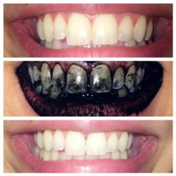AC teeth