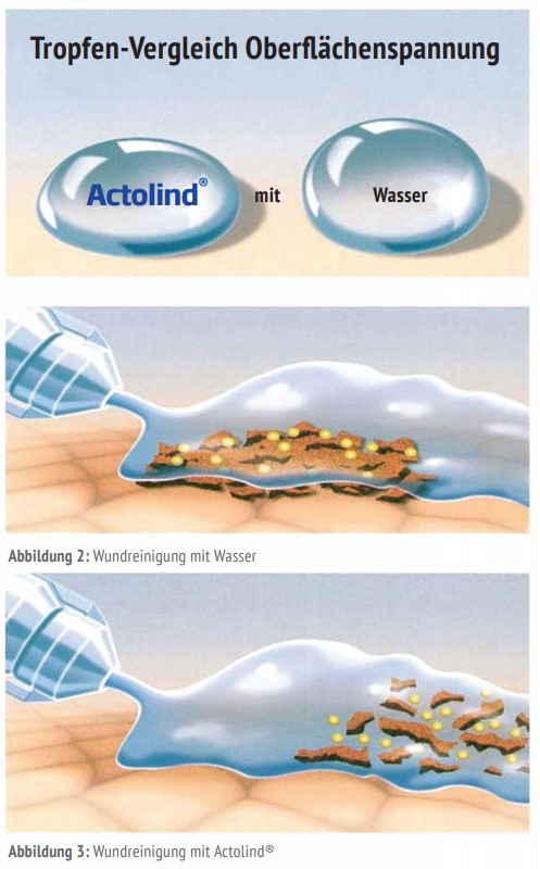 actolind-polyhexanid-info-3