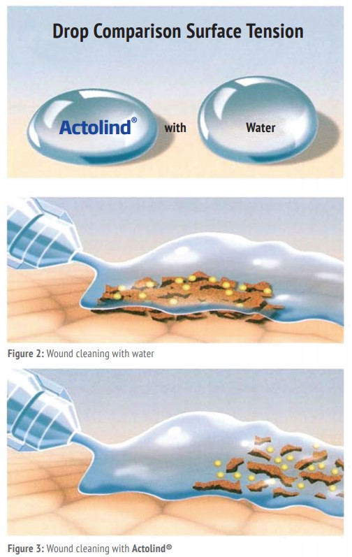 wound-cleaning