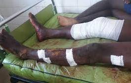 MANIF DE L'OPPOSITION AU TOGO : cinq blessés par balle dans des heurts à Lomé