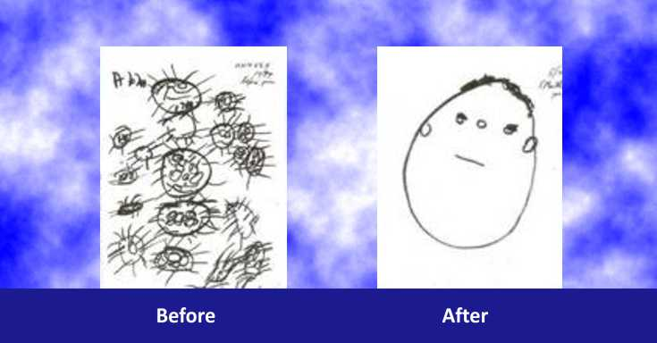 ADDHD before and after Acu-ADHD