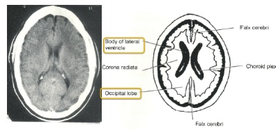 worms = lateral ventricles