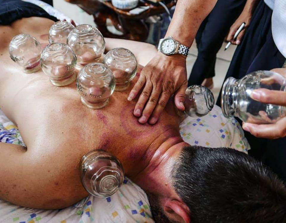 Acupuncture Coral Springs Cupping Therapy